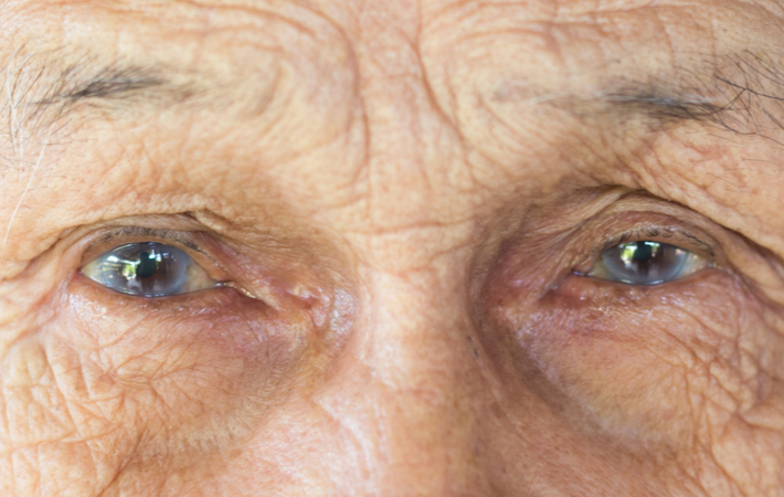 Mild Cataracts Patient